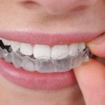 studi-dentistici-orazio-ischia-lipari-messina-4-1